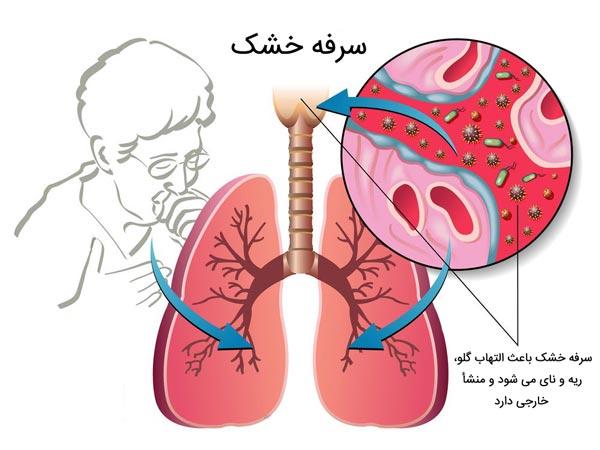 دلایل و علائم سرفه خشک