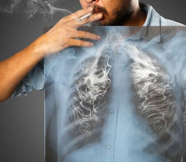 ترک سیگار برای درمان حساسیت ریه